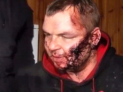 Участника Евромайдана Дмитрия Булатова похитили и пытали – The Guardian